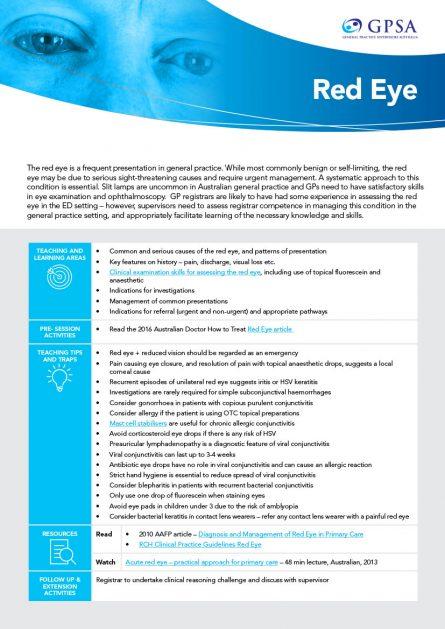 Teaching aid_red eye